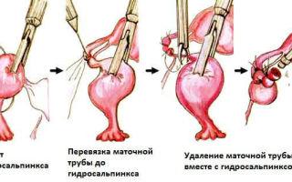 Как определить гидросальпинкс в маточных трубах
