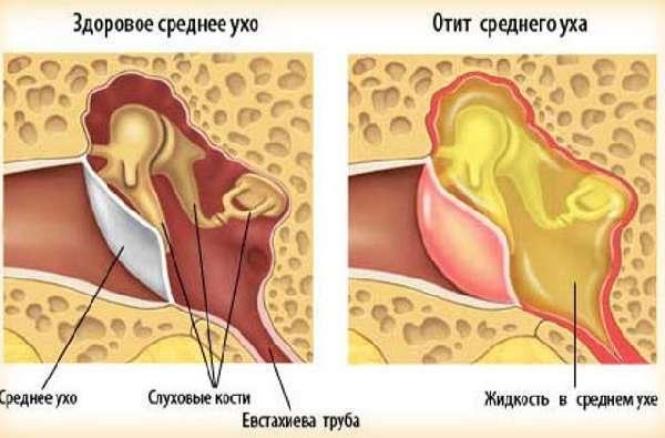 Самопродувание слуховых труб как это делать
