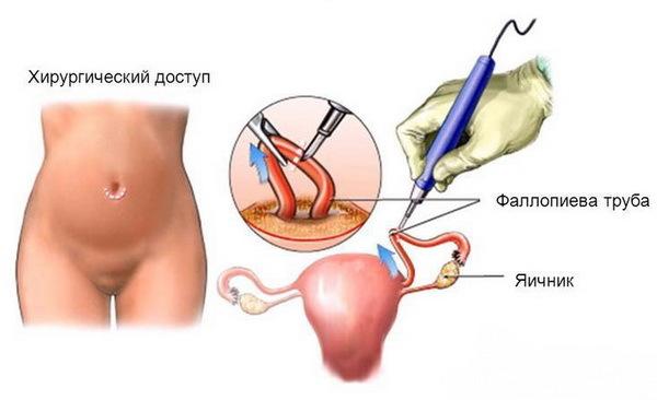 Фимбриальный конец трубы запаян