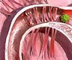 Как можно избавиться от спаек в маточных трубах без операции