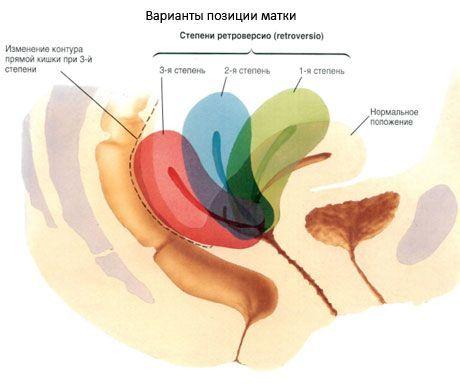 Трубные углы матки что это